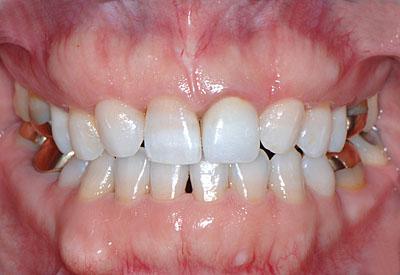 歯列矯正 皺若 返りGVBDO やり直し 年齢不詳 画像 東京 大阪 名医