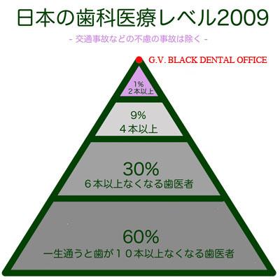 デンタルディマンド,東京,Dental,Demand,良,究極,理想,歯科治療, GVBDO,G.V. BLACK DENTAL OFFICE