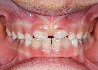 子供,虫歯治療 ,名医 ,最新 ,方法,GVBDO,G.V. BLACK DENTAL OFFICE