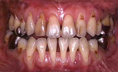 歯列矯正,失敗,失敗例,画像