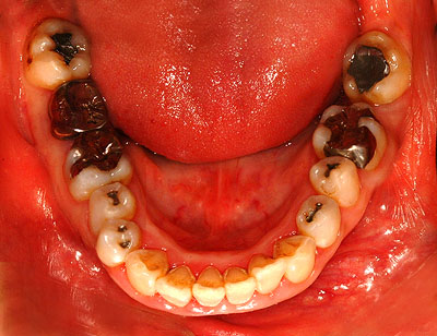 奥歯,抜歯,インプラント,不要,無用,歯列矯正,奥歯,抜歯,移動,不安,東京,名医,G.V. BLACK DENTAL OFFICE,GVBDO