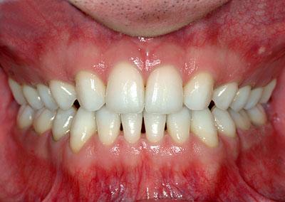 生まれつき前歯がない,乳歯,のみ,先天的,欠如歯,インプラント,ブリッジ,名医,G.V. BLACK DENTAL OFFICE,GVBDO