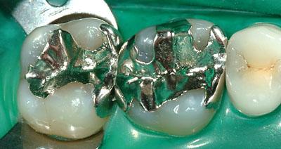 スライスカット,画像,写真,インレー,虫歯再発,歯科治療, G.V. BLACK DENTAL OFFICE ,GVBDO,,
