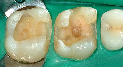 スライスカット,虫歯,画像,インレー,再発,デメリット,歯科治療,メリット, G.V. BLACK DENTAL OFFICE ,GVBDO ,