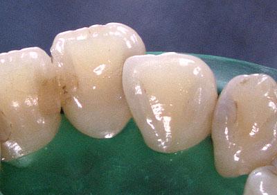 名医,必ず,ラバーダム,とは,使う,理由,画像,良い,歯医者,悪い,見分け方, G.V. BLACK DENTAL OFFICE,GVBDO