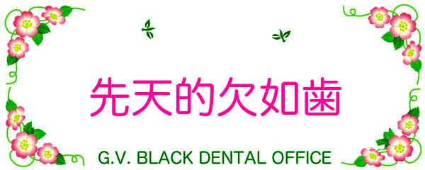 メタルボンド,メタボン,奥歯,大臼歯,GVBDO,G.V. BLACK DENTAL OFFICE