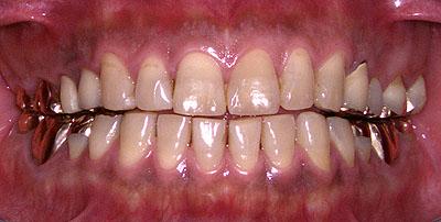 顎関節症,咬合挙上,補綴 ,病院 ,治らない, 咬み合わせ,名医,G.V. BLACK DENTAL OFFICE,GVBDO