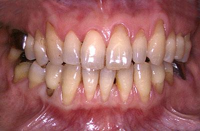 楔状欠損,くさび,歯,横,虫歯,画像,歯茎,退縮,根本,付根,,名医G.V. BLACK DENTAL OFFICE,GVBDO