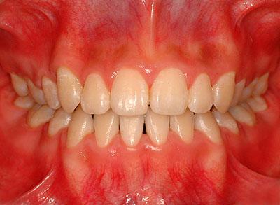 歯列矯正,子供,適齢期,小児歯科,口コミ,評判,小学生,名医,G.V. BLACK DENTAL OFFICE,GVBDO