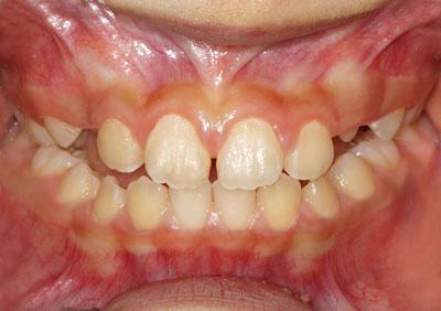 乳歯,永久歯,生え替わり,順番,画像,8才,9才,10才,11才,GVBDO,G.V. BLACK DENTAL OFFICE