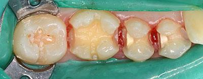 amalgam, dental,アマルガム,歯科用,治療方法,gvbdo,G.V. BLACK DENTAL OFFICE