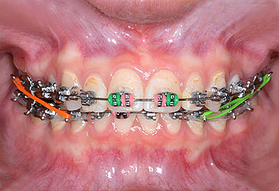 orthodontics,brace,歯列矯正,ブラケット,gvbdo,G.V. BLACK DENTAL OFFICE