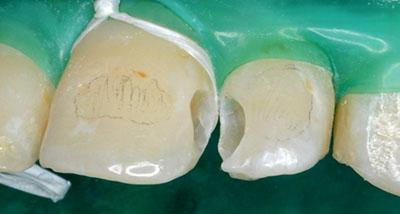 orthodontics,brace,歯列矯正,ブラケット,gvbdo,G.V. BLACK DENTAL OFFICE