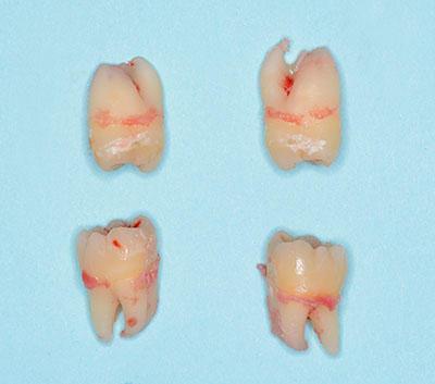 wisdom tooth,親知らず,抜歯,extraction,gvbdo