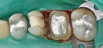 preparation,tooth,dental,形成,歯,gvbdo,G.V. BLACK DENTAL OFFICE