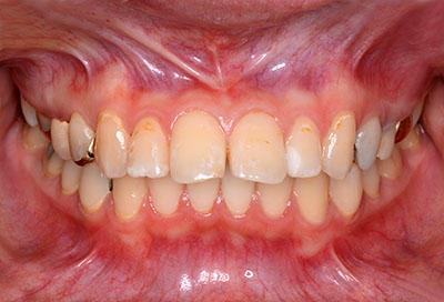 gold crown,tooth,dental,金歯,歯科,ゴールドクラウン,gvbdo