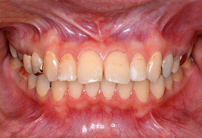 orthodontics,brace,������,�֥饱�å�,gvbdo