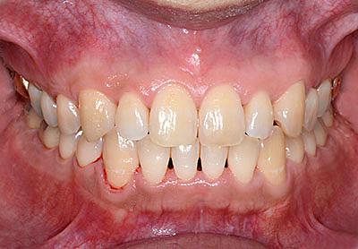 whitening,歯,ホワイトニング,院内,office,home