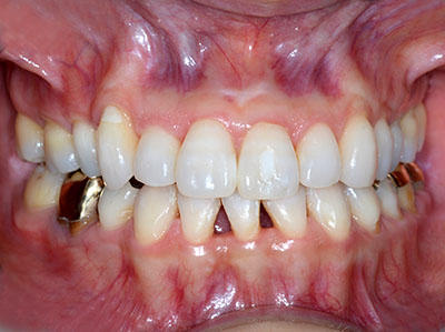 歯, ホワイトニング, 大成功,アメリカ, 自宅, しみる,東京, 費用 期間,GVBDO,G.V. BLACK DENTAL OFFICE