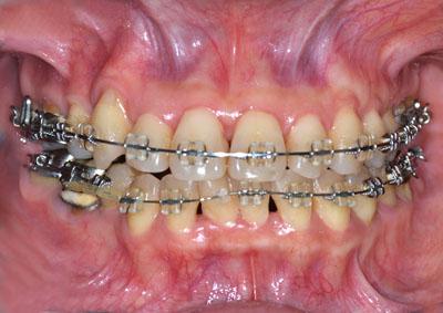 顎切り手術, 歯列矯正, 失敗,ナイトガード, プレート, 顎関節症,治療,GVBDO,G.V. BLACK DENTAL OFFICE
