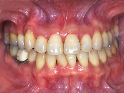 歯,ホワイトニング,歯磨き粉,アメリカ,自宅,しみる,東京,費用,期間,GVBDO,G.V. BLACK DENTAL OFFICE