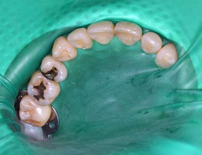 歯歯科,ラバーダム,画像,根管治療,虫歯治療,手順,保険,ラバーダムクランプ,防湿,種類.専門医,東京,大阪,名古屋,GVBDO,G.V. BLACK DENTAL OFFICE
