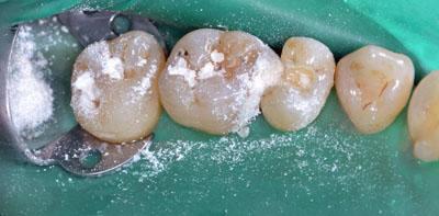 アマルガム, Amalgam, 歯科用,歯列矯正, 成功, 修復治療, 名医,高山市, 虫歯,治療, amalgam, 安全,理由,GVBDO,G.V. BLACK DENTAL OFFICEE