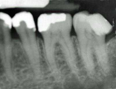 神経を抜いた歯が痛い,神経,歯,痛み,変色,抜く,治し方,治療方法 顎関節症,慢性化,不定愁訴,GVBDO,G.V. BLACK DENTAL OFFICE