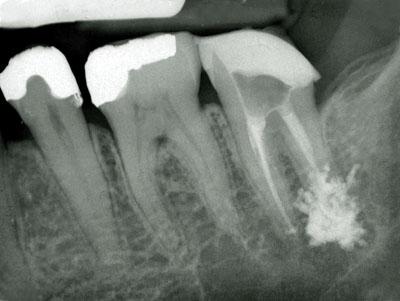 歯根管充填,根幹治療,神経を抜いた歯が痛い,神経,激痛,変色,抜く,治し方,治療方法,慢性化,GVBDO,G.V. BLACK DENTAL OFFICE