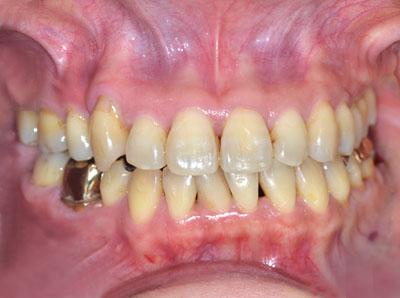 スーパーデンティスト,Super Dentist,歯科医師,名医,歯医者,基準,見つけ方.とは,東京,大阪,名古屋,GVBDO,G.V. BLACK DENTAL OFFICE