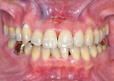 失敗,歯列矯正,,回復,治る,実際の症例,外科手術,必要,診断,ケース ,画像,写真,名医とは,GVBDO,G.V. BLACK DENTAL OFFICE,