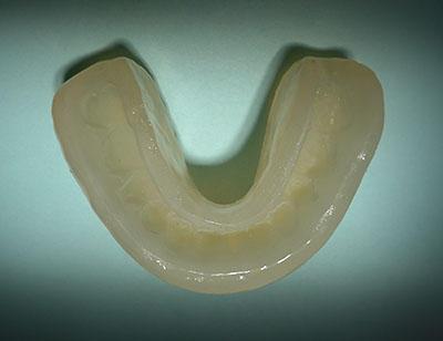 最新,歯列矯正,保定装置,DP,ソフト,リテーナー,ホーレータイプ,GVBDO,G.V. BLACK DENTAL OFFICE