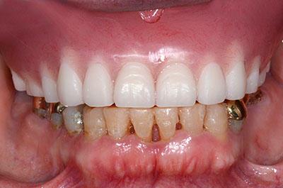 denture,complete,partial,総入れ歯,部分入れ歯,gvbdo