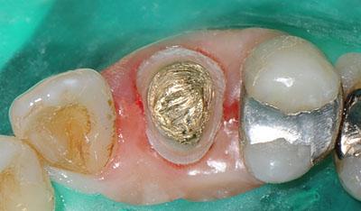 歯列矯正中,犬歯,仮歯,白いクラウン,画像,写真,名医,G.V. BLACK DENTAL OFFICE,GVBDO