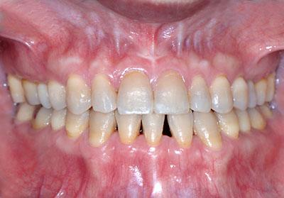 保定装置 スリーインサイザル 画像 Three incisal ortho 歯列矯正 ...