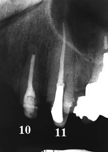 根管治療,痛み,専門医,再治療,ラバーダム,画像,名医,アメリカ歯科標準治療,G.V. BLACK DENTAL OFFICE,GVBDO
