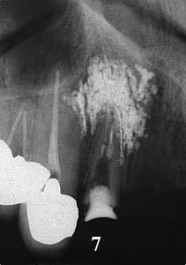 ルートカナル,根管治療,痛み専門医,再治療,ラバーダム,画像,名医,アメリカ歯科標準治療,G.V. BLACK DENTAL OFFICE, GVBDO