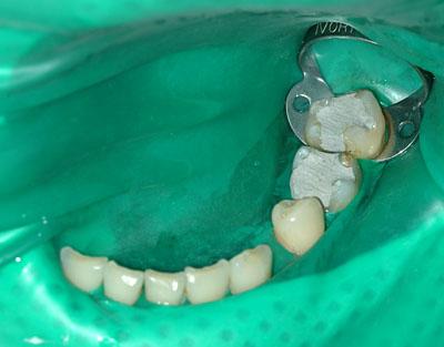 支台歯形成,マージン,シャンファー,遊離エナメル,名医,アメリカ歯科標準治療,G.V. BLACK DENTAL OFFICE, GVBDO