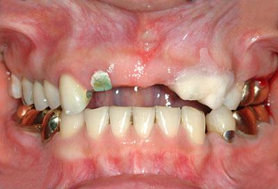 クラウン,奥歯,被せ物,ゴールド, 一生もの,価格,名医,アメリカ歯科標準治療,G.V. BLACK DENTAL OFFICE,GVBDO