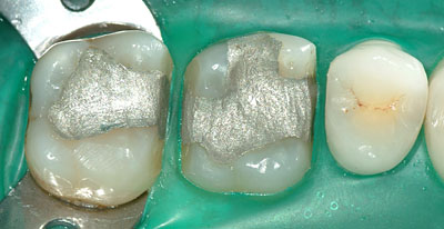 支台歯形成,マージン,シャンファー,遊離エナメル,名医,アメリカ歯科標準治療,G.V. BLACK DENTAL OFFICE,GVBDO