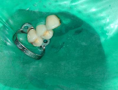 ラバーダム,装着方法,画像,写真,歯がない,根管治療,名医,アメリカ歯科標準治療,G.V. BLACK DENTAL OFFICE,GVBDO