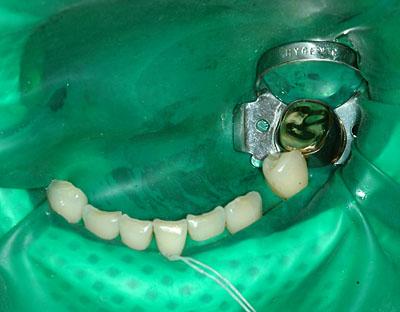 歯列矯正,ブラケット,下顎だけ装着,理由,LBB,名医,アメリカ歯科標準治療,G.V. BLACK DENTAL OFFICE,GVBDO