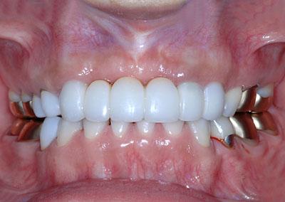 慢性的,歯,痛, 原因, 治療方法,抜歯,総入歯,危機, 20代, 30代, インプラント,顎関節症,名医,専門医,G.V. BLACK DENTAL OFFICE,GVBDO
