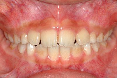 先天性色素性母斑,congenital,nevus,nevi,アメリカ歯科標準治療,G.V. BLACK DENTAL OFFICE,GVBDO