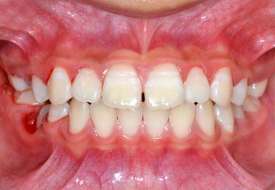 歯列矯正,失敗,噛み合わせ,合わない,隙間,顔が歪む,関節が鳴る,鼻汁,耳鼻科系,悪い,GVBDO,G.V. BLACK DENTAL OFFICE