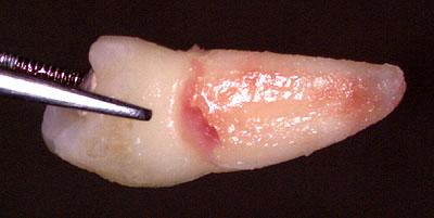 抜歯矯正, 名医,どの歯,抜くか,選び方, 方法, 選択基準, 対象,便宜抜歯, 画像,G.V. BLACK DENTAL OFFICE,GVBDO