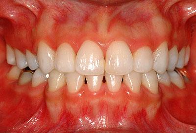 子宮内膜症, 歯, 漂白, ホワイトニング,治療方法 ,子宮筋腫, 生理不順, 生理痛 ,名医,G.V. BLACK DENTAL OFFICE,GVBDO