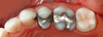 歯列矯正,親知らず,移動,ホープレス,奥歯,抜歯,インプラント,不要,回避,いらない,実例,まとめ,GVBDO,G.V. BLACK DENTAL OFFICE