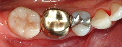 インプラント,不要,歯列矯正,ほんとうの治療,名医, G.V. BLACK DENTAL OFFICE,GVBDO,,