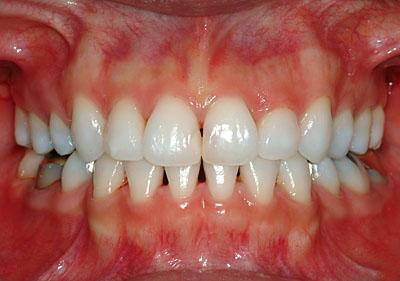 歯列矯正,親知らず,移動,ホープレス,奥歯,抜歯,インプラント,不要,回避,いらない,実例,まとめ,GVBDO,G.V. BLACK DENTAL OFFICE,
